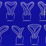 Infertilidad por malformación uterina